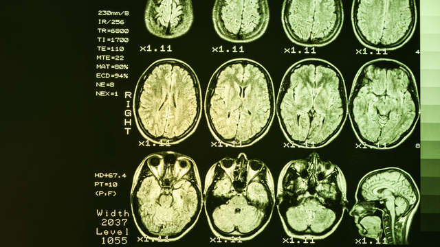 "Huntington's disease: ""Much misunderstanding due to unfamiliarity"" 
