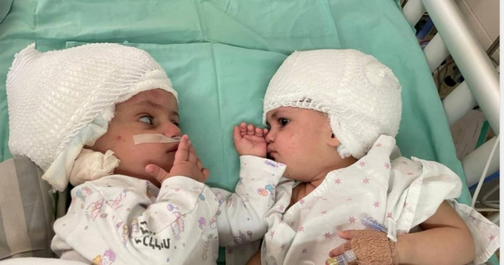 Medical miracle: conjoined twins separated by rare surgery  Abroad